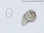 Schistosoma mansoni parasite